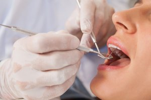 family dental care in bloomingdale il